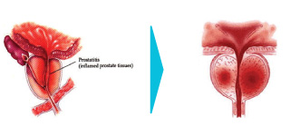NGS Diagnostic of Wound Before and After