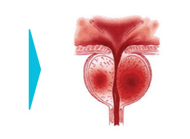 Urology Empowering Urologists with DNA Level Certainty  | MicroGen