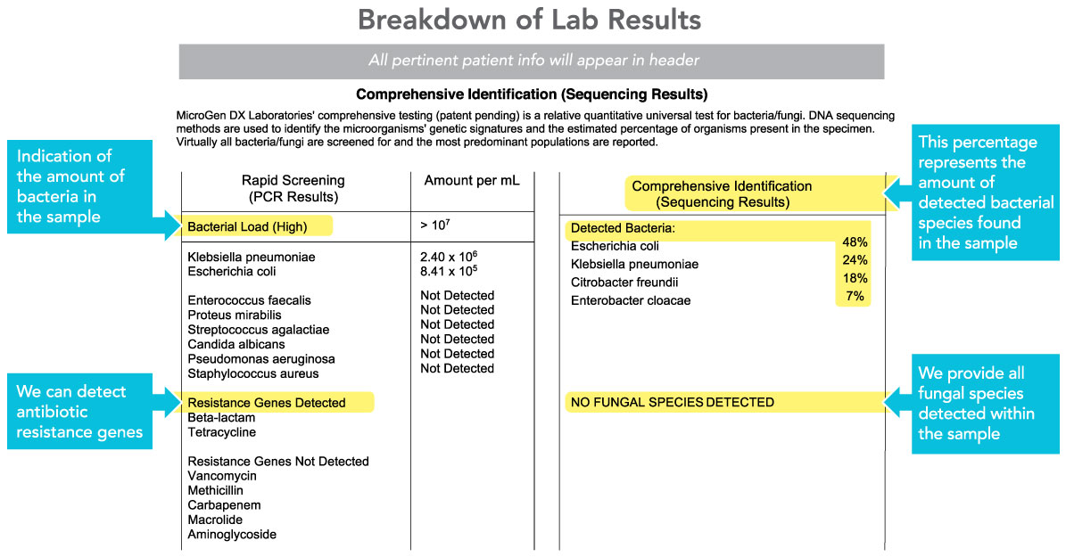 Prostate Infection Sample Lab Report