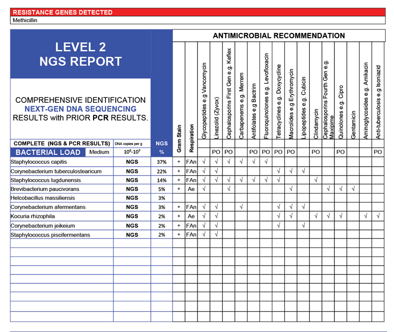 Nail Infection Sample Lab Report