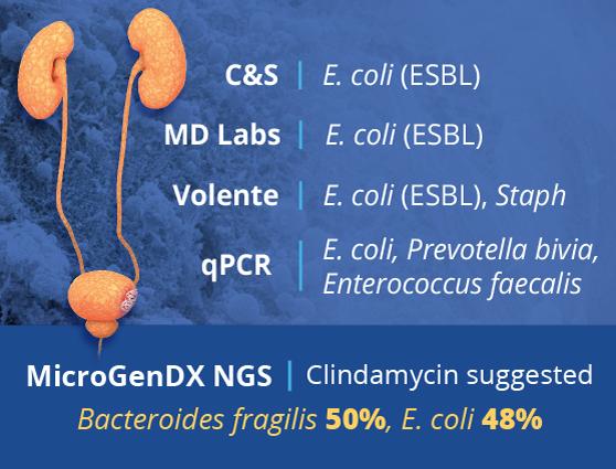 microgendx bacteroides fragilis