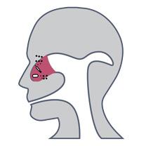 patient uti infection