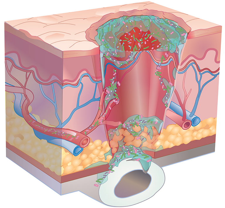 toenail infection